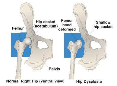 Hip dysplasia in the dog Chow Chow