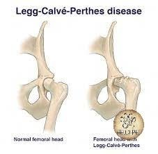 Legg-Calve-Perthes in poodle dogs-min